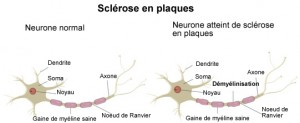 sclerose-en-plaques-mecanisme