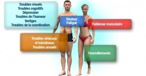 sysmptome-sclérose-plaques