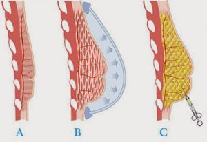lipofilling-des-seins
